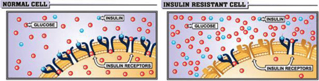 insulin-resistant-cell